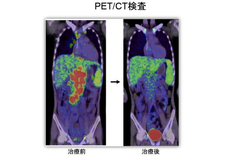 PET/CT検査