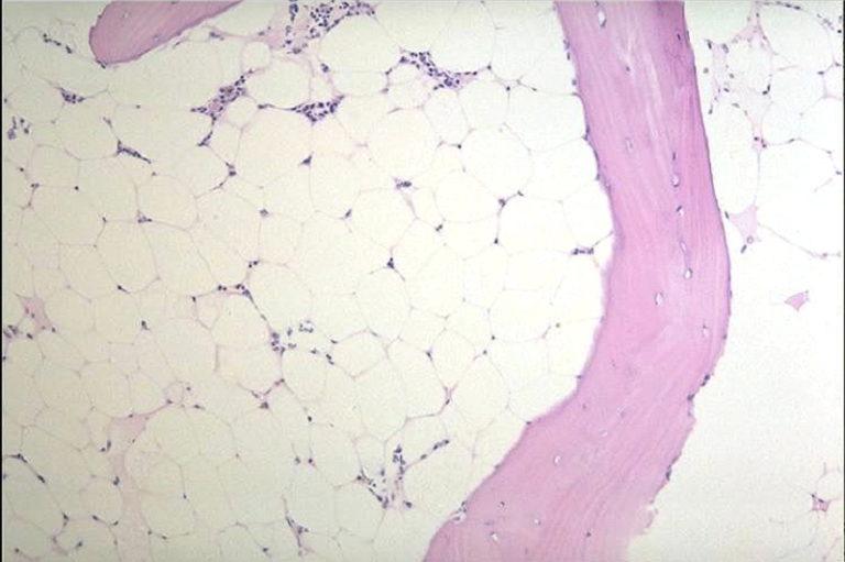 再生不良性貧血の骨髄像
